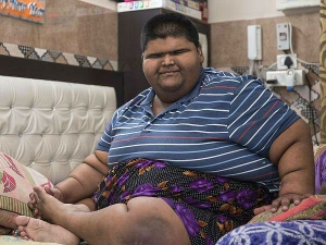 World Heaviest Teen 237 Kg Delhi Boy Undergoes Weight Loss Surgery Delhi