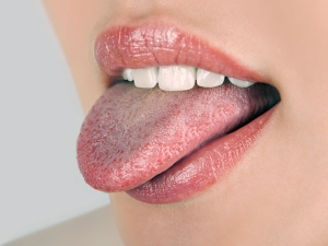 Home Remedies Get Rid Spots From The Tongue