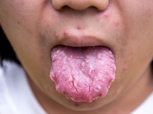 Tongue Cancer You Need Know About Everything