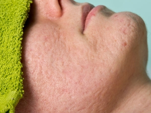 What Causes Large Pores How Get Rid Large Pores