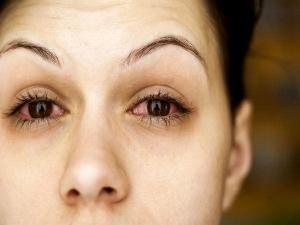 How Naturally Heal Eyelid Eczema
