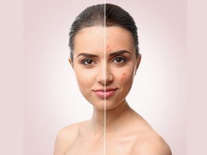 Effective Easy Home Remedies Treat Facial Scars