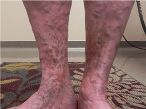 What Is Chronic Venous Insufficiency