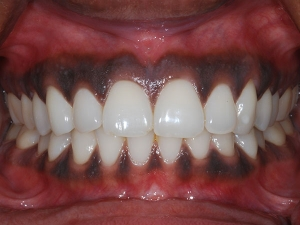 Black Gums Spots On Gums Causes Treatment