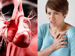 Menopausal Symptoms May Trigger Risk Heart Disease