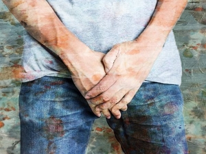 How Manage Penile Vitiligo Symptoms Causes Diagnosis