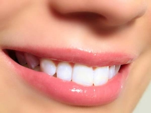 Simple Ways Naturally Whiten Your Teeth At Home