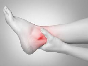 Home Remedies Of Ankle Sprain