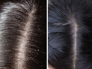 Different Types Of Dandruff And How To Get Rid Of Them
