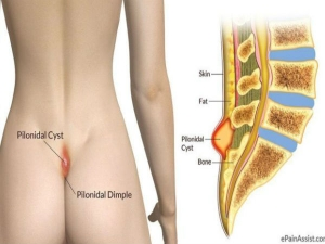 Pilonidal Sinus Causes Symptoms And Treatments