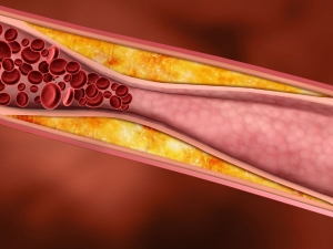Coronary Artery Disease Causes And Home Remedies