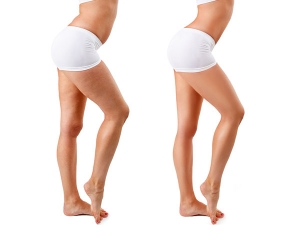 Know The Reason Why Cellulite Is More Common In Women Than Men