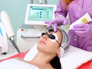 Benefits Of The Carbon Laser Peel Technique