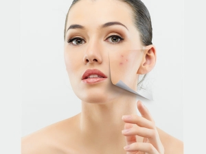 Know Here How Pollution Is Impacting Your Skin