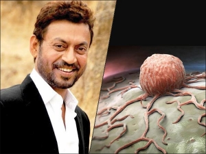 Irrfan Khan Dies At 54 Fighting Colon Infection