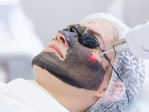 What Is A Carbon Laser Facial Know The Benefits Of The Charcoal Peel And Cost