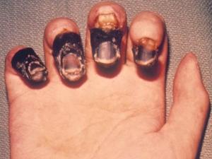 What Is Bubonic Plague Symptoms Causes Treatment And Precautions