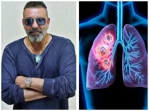 Sanjay Dutt Diagnosed With Stage 3 Lung Cancer Know More About Symptoms And Treatment