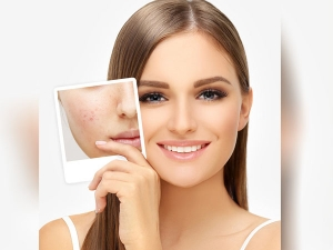 Know How To Hide Acne Scars With Makeup