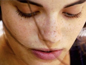 Use These Home Remedies To Get Rid Of Freckles