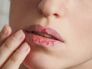 Lips Care Tips For Pink Lips In Hindi