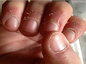 Best Home Remedies For Peeling Skin On Finger