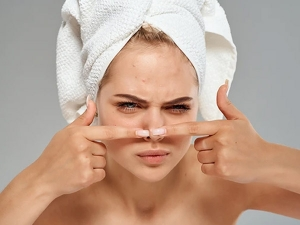 How To Get Rid Of Pimple According To The Experts