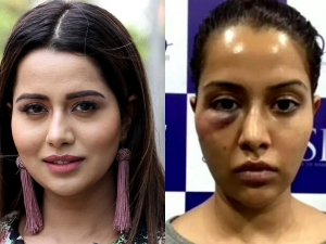Tamil Actress Raiza Wilson Facial Treatment Gone Wrong Know The Side Effects Of Facial Treatment