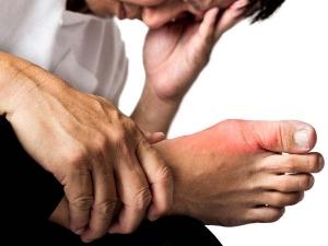 Ayurvedic Medicine Ashwagandha For Lowering Uric Acid And Treating Gout