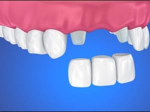 What You Should Do If Your Dental Crown Falls Off