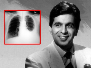 Dilip Kumar Diagnosed With Bilateral Pleural Effusion You Need To Know About This Condition