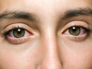 Best Home Remedies To Reduce Eye Strain In Hindi