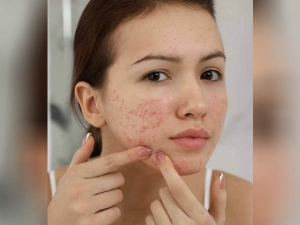 Do Not Use Toothpaste And Baking Soda To Get Rid Of Acne In Hindi