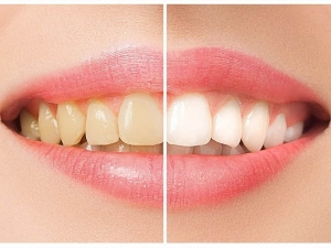 How To Make Homemade Toothpaste For White Teeth In Hindi