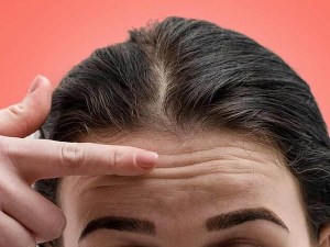 How To Reduce Forehead Wrinkles In Hindi