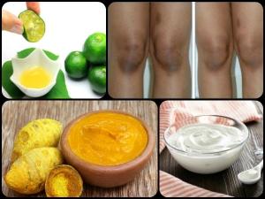 घुटनों के कालेपन से छुटकारा दिलाएं ये 6 घरेलू उपचार