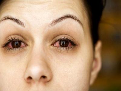 आंखों में दर्द होने के मुख्य वजह