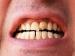 दांत में दिखने वाले सफेद व भूरे धब्बों को न करें इग्नोर
