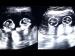 गर्भ में जुड़वां बच्चों की लड़ाई का वीडियो हुआ वायरल